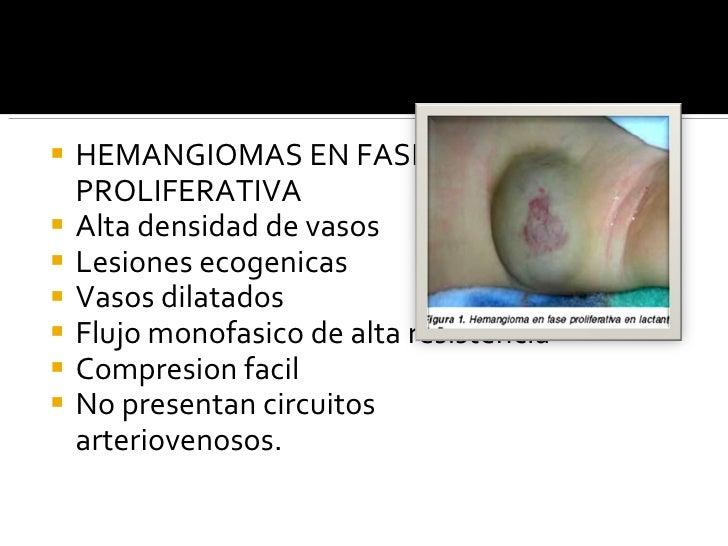 <ul><li>HEMANGIOMAS EN FASE PROLIFERATIVA </li></ul><ul><li>Alta densidad de vasos </li></ul><ul><li>Lesiones ecogenicas <...