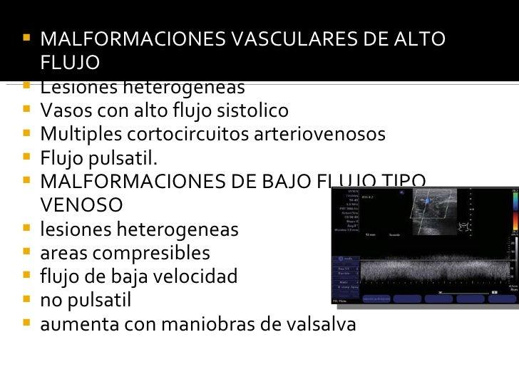 <ul><li>MALFORMACIONES VASCULARES DE ALTO FLUJO </li></ul><ul><li>Lesiones heterogeneas </li></ul><ul><li>Vasos con alto f...