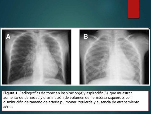 En los pacientes asintomáticos el examen físico revela una asimetría en la auscultación con ausencia de entrada de aire en...