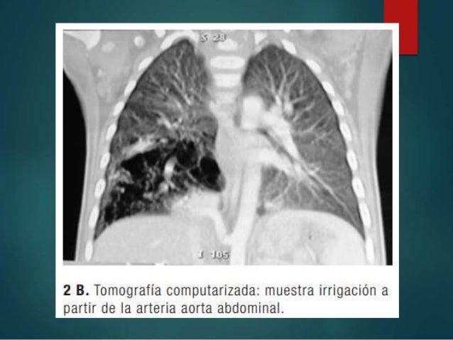 • POST NATAL Los niños que presentan síntomas precozmente tienen indicación ineludible de resección quirúrgica en el momen...