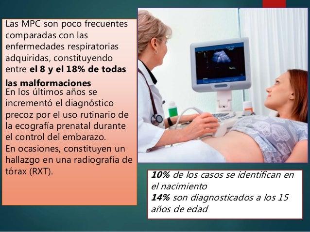 Las MPC son poco frecuentes comparadas con las enfermedades respiratorias adquiridas, constituyendo entre el 8 y el 18% de...
