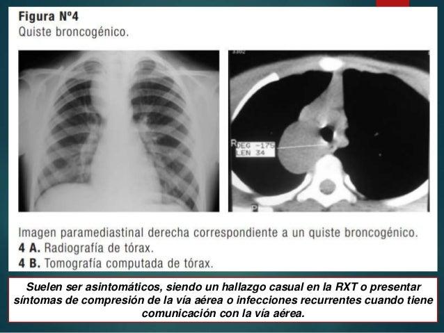 Malformaciones congenitas de las vias respiratorias inferiores