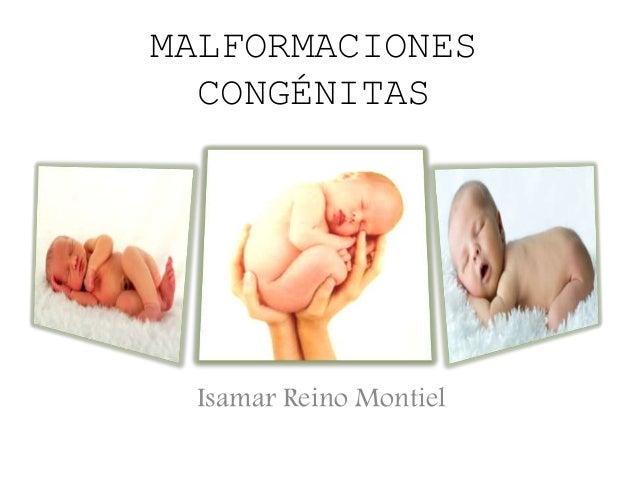MALFORMACIONES CONGÉNITAS Isamar Reino Montiel