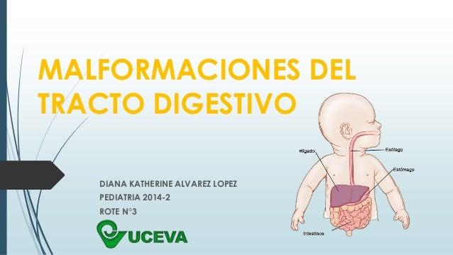 MALFORMACIONES DEL  TRACTO DIGESTIVO  DIANA KATHERINE ALVAREZ LOPEZ  PEDIATRIA 2014-2  ROTE N°3