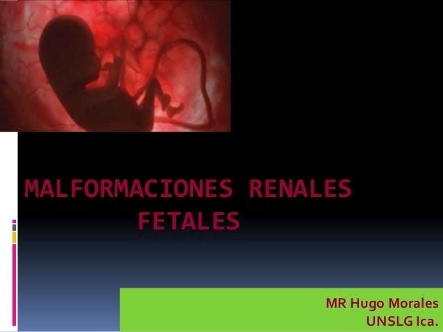 MALFORMACIONES RENALES FETALES MR Hugo Morales UNSLG Ica.