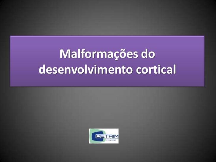 Malformações dodesenvolvimento cortical