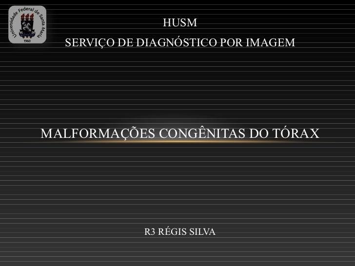 HUSM  SERVIÇO DE DIAGNÓSTICO POR IMAGEMMALFORMAÇÕES CONGÊNITAS DO TÓRAX             R3 RÉGIS SILVA