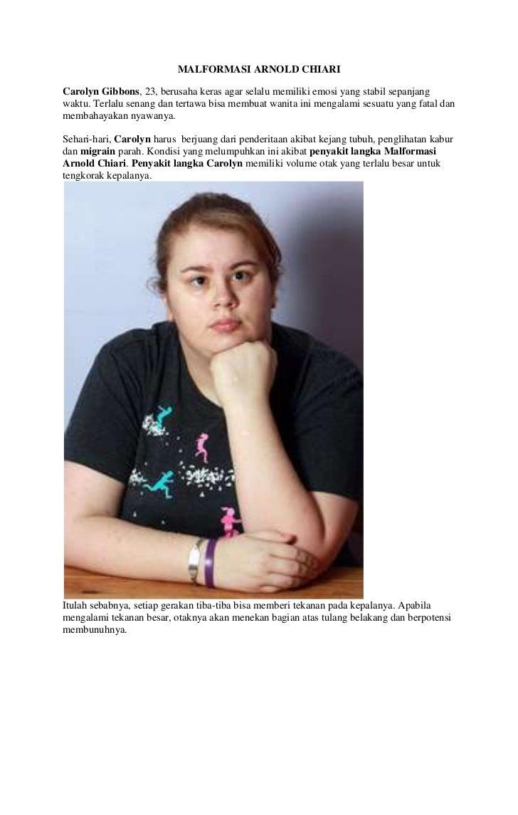 MALFORMASI ARNOLD CHIARICarolyn Gibbons, 23, berusaha keras agar selalu memiliki emosi yang stabil sepanjangwaktu. Terlalu...