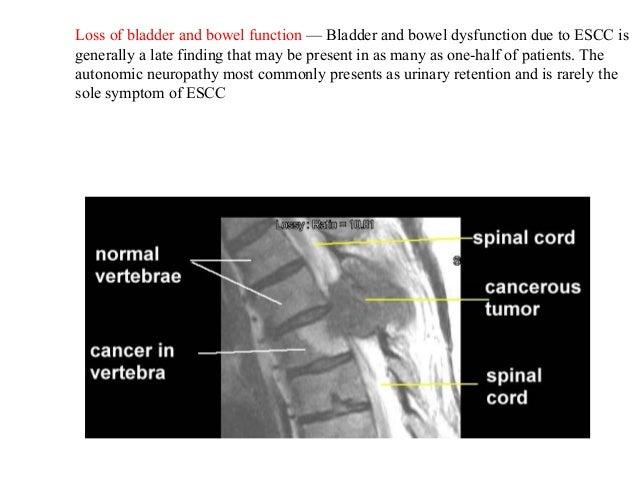 Maliganant Spinal Cord Compression Main