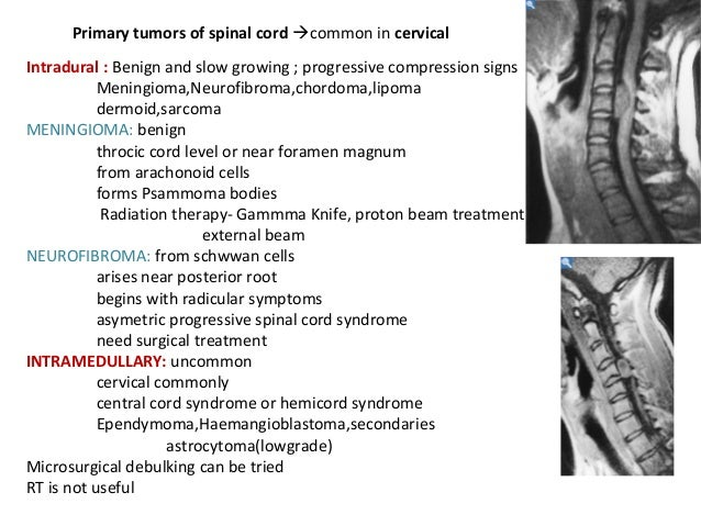 epidural cervical spinal steroid injection