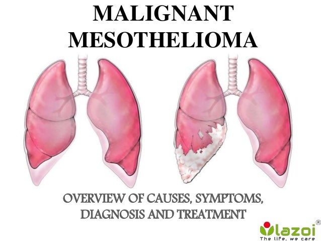 MALIGNANT MESOTHELIOMA OVERVIEW OF CAUSES, SYMPTOMS, DIAGNOSIS AND TREATMENT
