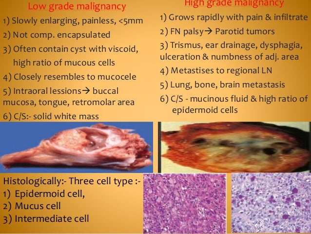 Low grade malignancy 1) Slowly enlarging, painless, <5mm 2) Not comp. encapsulated 3) Often contain cyst with viscoid, hig...
