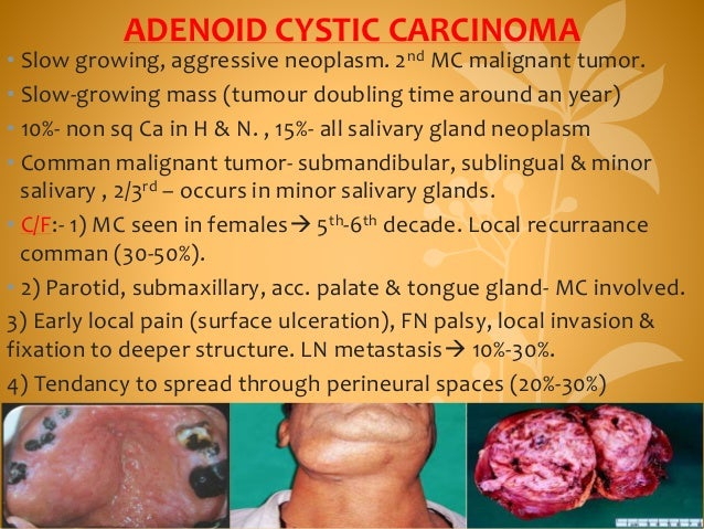 ADENOID CYSTIC CARCINOMA • Slow growing, aggressive neoplasm. 2nd MC malignant tumor. • Slow-growing mass (tumour doubling...