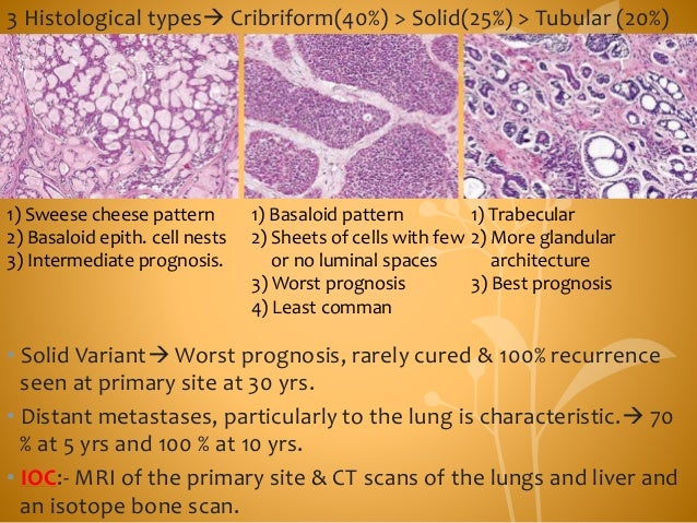 3 Histological types Cribriform(40%) > Solid(25%) > Tubular (20%) • Solid Variant Worst prognosis, rarely cured & 100% r...