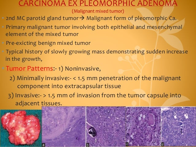 CARCINOMA EX PLEOMORPHIC ADENOMA (Malignant mixed tumor) • 2nd MC parotid gland tumor Malignant form of pleomorphic Ca. •...