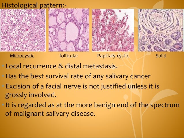 Histological pattern:- •Local recurrence & distal metastasis. •Has the best survival rate of any salivary cancer •Excision...