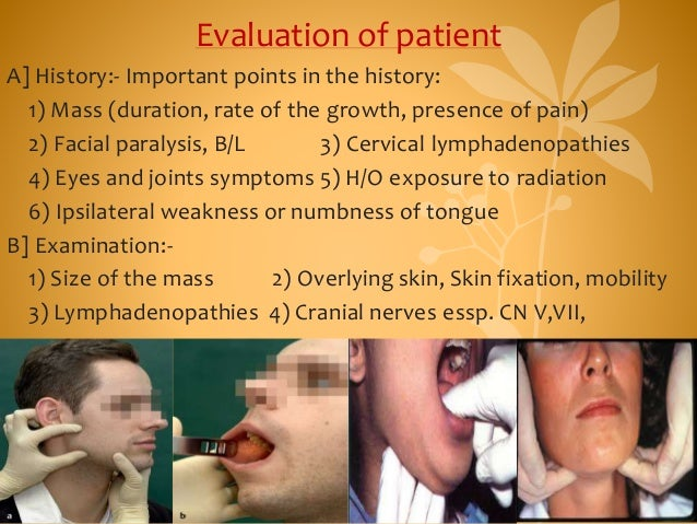 Evaluation of patient A] History:- Important points in the history: 1) Mass (duration, rate of the growth, presence of pai...