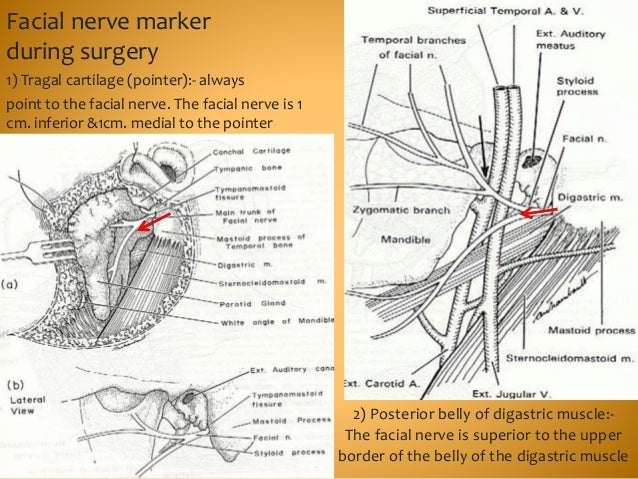 Facial nerve marker during surgery • . 2) Posterior belly of digastric muscle:- The facial nerve is superior to the upper ...