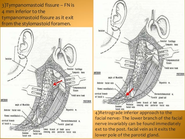 4)Retrograde inferior approach to the facial nerve:- The lower branch of the facial nerve invariably can be found immediat...