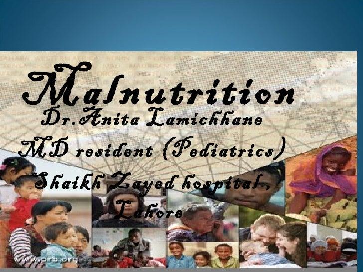 MalnutritionDr.Anita LamichhaneMD resident (Pediatrics)Shaikh Zayed hospital ,       Lahore
