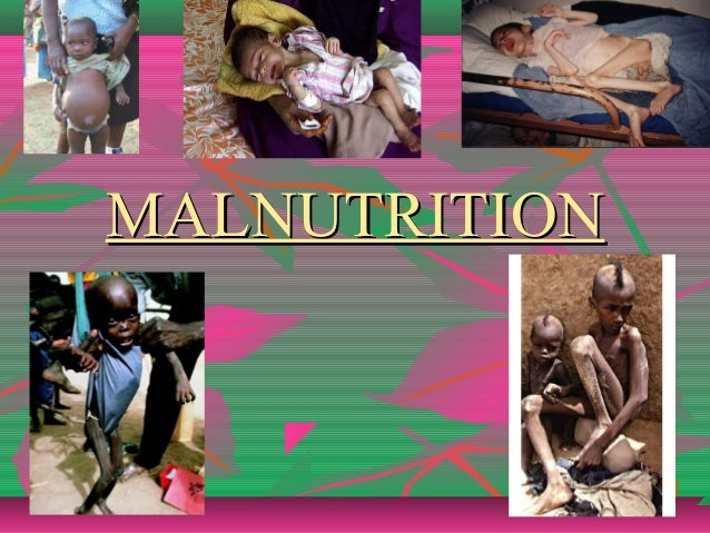 MALNUTRITIONMALNUTRITION