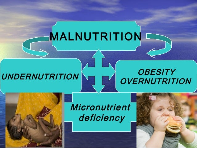 overnutrition and undernutrition Pledges and accelerating progresson addressing the challenge of undernutrition malnutrition is defined as not having enough energy or  or overnutrition.
