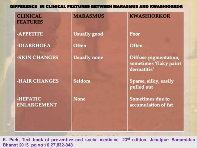 Malnutrition in india k park text book of preventive and social medicine fandeluxe Images