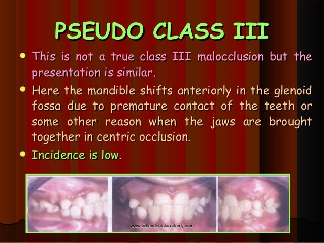 approaches to correction of class iii skeletal malocclusion A malocclusion is a misalignment or incorrect relation between the teeth of the  two dental arches when they approach each other as the jaws close  most  skeletal malocclusions can only be treated by orthognathic surgery  class ii:  distocclusion (retrognathism, overjet, overbite) in this situation, the mesiobuccal  cusp of.