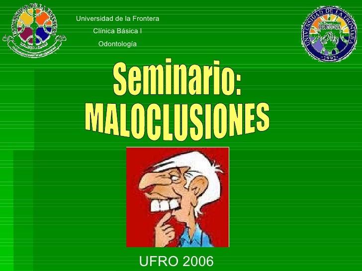 Seminario: MALOCLUSIONES Universidad de la Frontera Clínica Básica I Odontología UFRO 2006