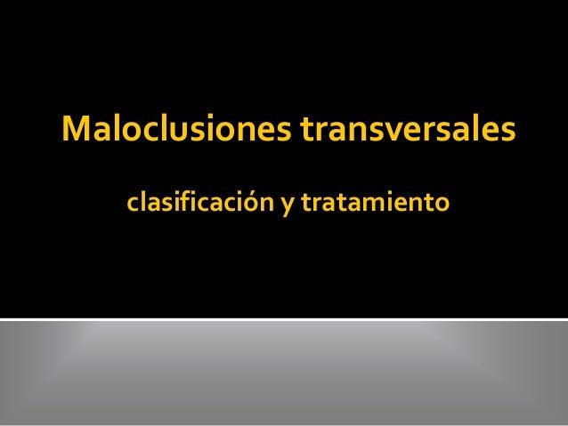 Maloclusiones transversales clasificación y tratamiento