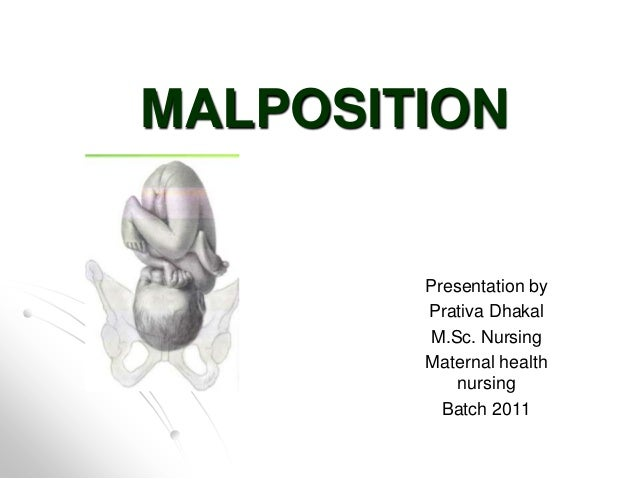 MALPOSITION  Presentation by Prativa Dhakal M.Sc. Nursing Maternal health nursing Batch 2011