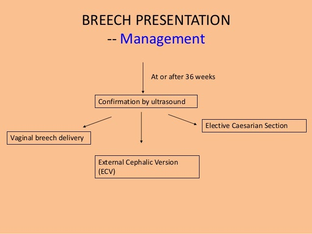 Malpresentationsmalpositions breech presentation ccuart Choice Image