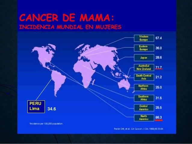 Resultado de imagen de cancer mama 100 %