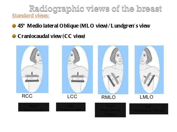Mammography Presentation