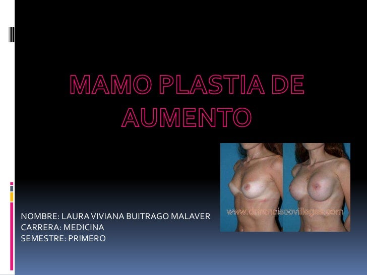 MAMO PLASTIA DE AUMENTO<br />NOMBRE: LAURA VIVIANA BUITRAGO MALAVER<br />CARRERA: MEDICINA <br />SEMESTRE: PRIMERO<br />