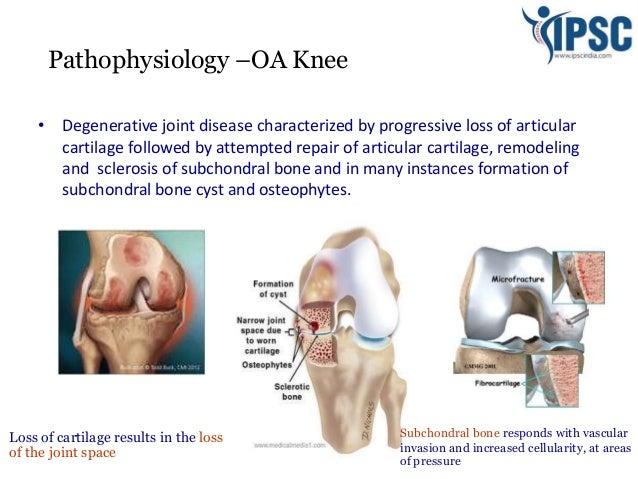 management of chronic knee pain