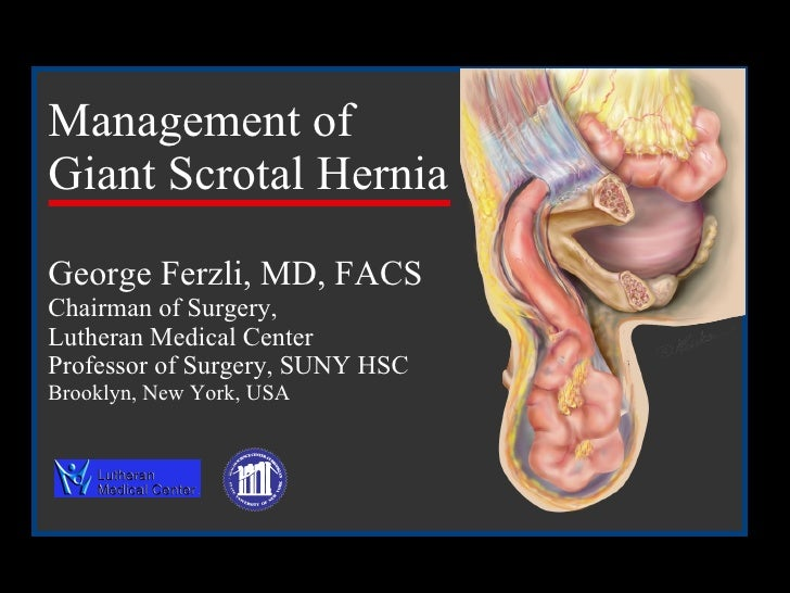 Management of  Giant Scrotal Hernia   George Ferzli, MD, FACS Chairman of Surgery,  Lutheran Medical Center Professor of S...