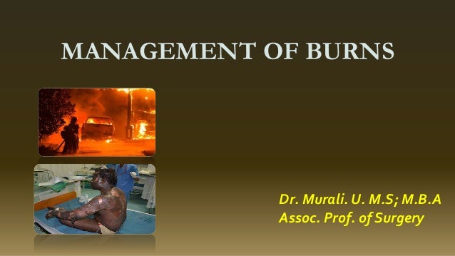 MANAGEMENT OF BURNS Dr. Murali. U. M.S; M.B.A Assoc. Prof. of Surgery