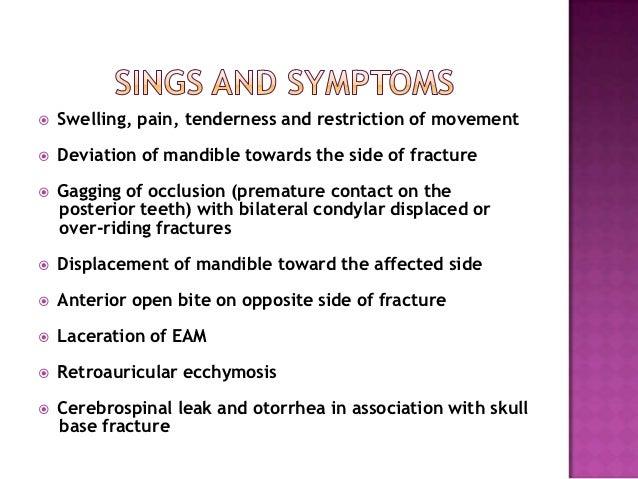 Management Of Condylar Fractures