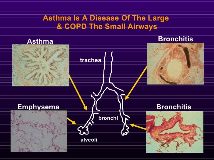 how is asthma similar to emphysema