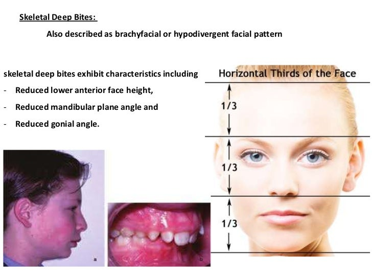 gonial angle as an indicator for growth pattern Age and gender estimation from mandible using lateral cephalogram gonial angle, growth modi a, sobti p age and gender estimation from mandible using lateral.