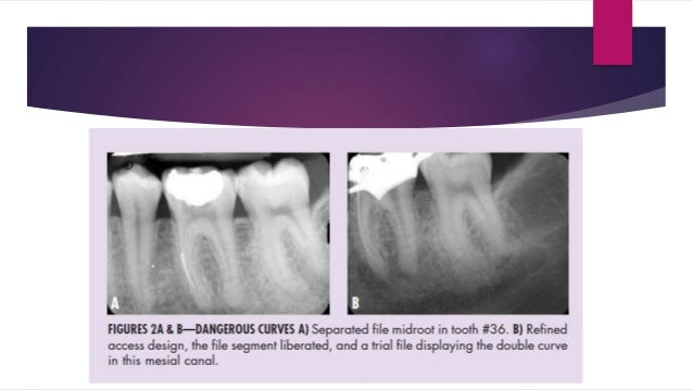 OUTCOME OF RETAINED INSTRUMENT REMOVAL The four treatment protocols have been suggested by the literature for management o...