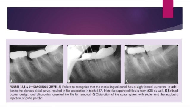  Though several factors like vitality of tooth, accessibility of tooth, position of fractured instrument in the canal, ta...