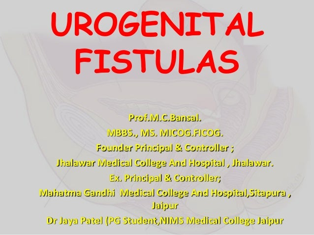 UROGENITAL FISTULAS Prof.M.C.Bansal. MBBS., MS. MICOG.FICOG. Founder Principal & Controller ; Jhalawar Medical College And...