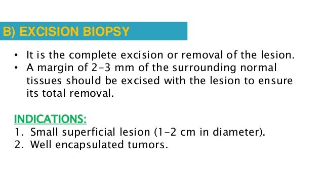 C) Drill biopsy (intra-osseous biopsy) 1. For obtaining samples from deeply seated lesions. 2. Indication: intra osseous l...