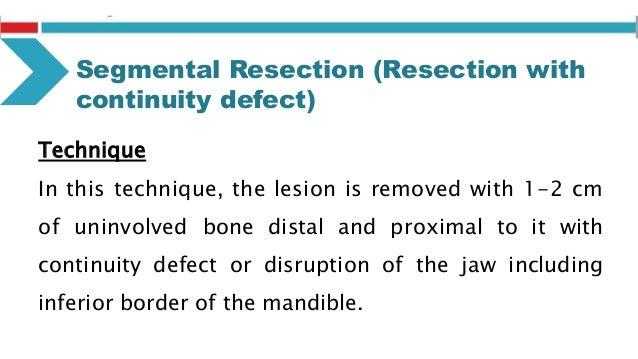 Modalities of Surgical excision Segmental Resection of Mandible: – Hemimandibulectomy – segmental mandibulectomy – posteri...
