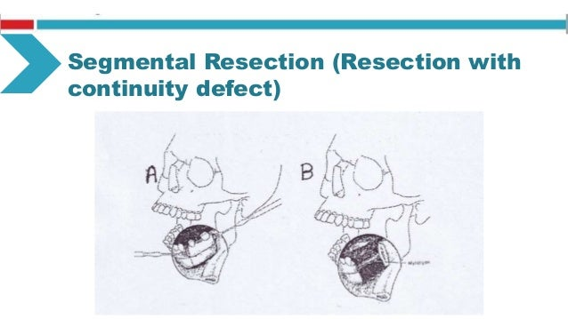 Total Resection Resection of tumor with removal of involved bone Involves: Mandibulectomy Maxillectomy