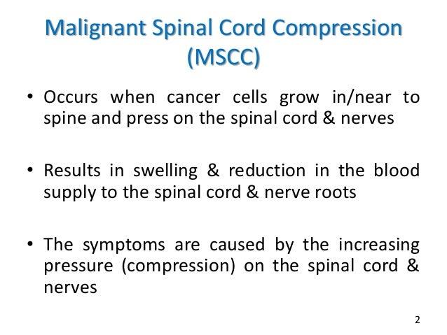 Management of malignant spinal cord compression Slide 2