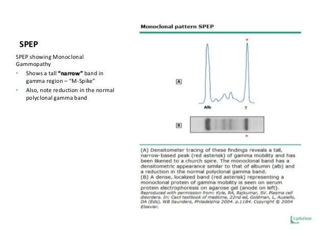 Management of multiple myeloma