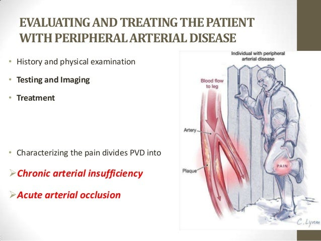 what does the term intermittent claudication refer to